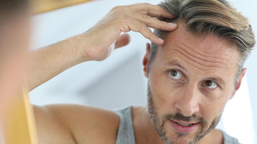 Anledningar för hårtransplantation